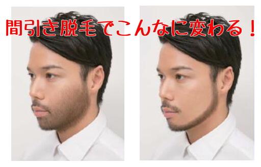 メンズTBCのヒゲ脱毛