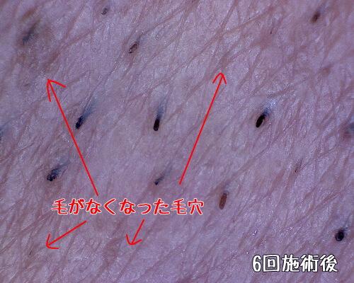 ヒゲ脱毛後の毛穴写真