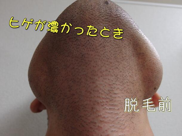 アゴヒゲ脱毛