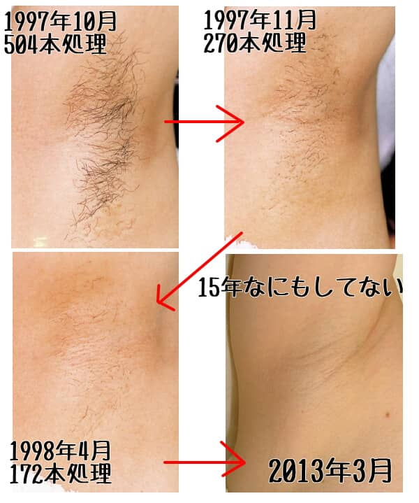 TBCの永久脱毛効果