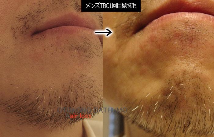 メンズTBC 150本髭脱毛