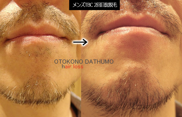 白髪髭250本脱毛