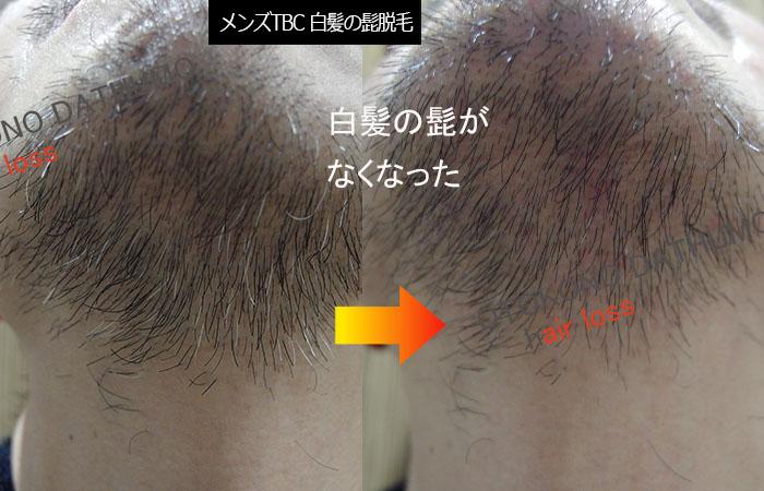 白髪のヒゲ脱毛したビフォーアフター