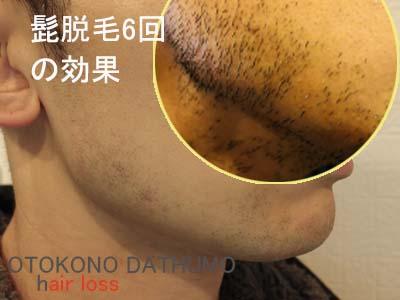 リンクスのヒゲ脱毛効果(K君)