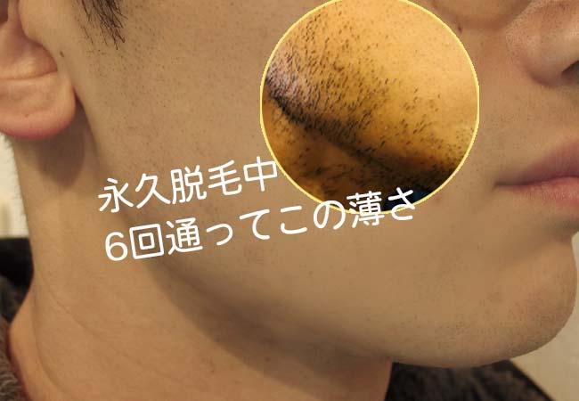 男性の永久脱毛が激安