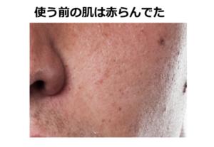 バルクオム使う前の肌